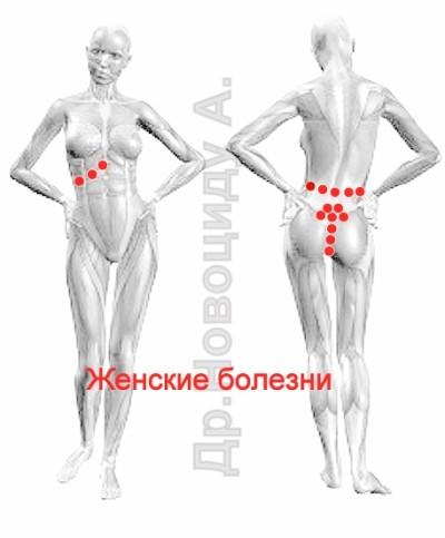 Женские болезни, схемы гирудотерапии