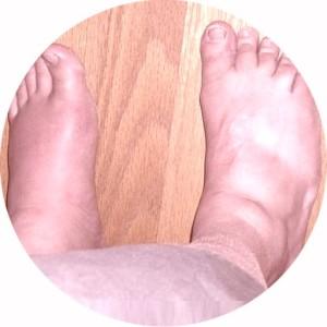 отек ног у мужчин причины