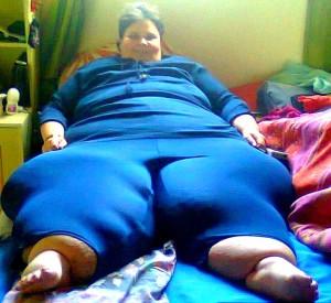 Отеки ног у женщин, причины