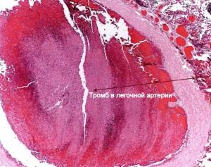 Тромбофилия - тромб в легочной артерии