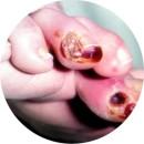 Язвы ног при сахарном диабете