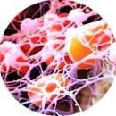 Тромб и нити фибрина