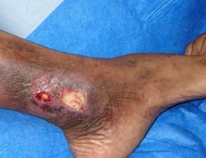 Трофическая язва при варикозе