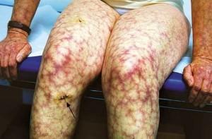 Антифосфолипидный синдром - ливедо, кожная сеточка