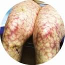 Антифосфолипидный синдром - Ливедо
